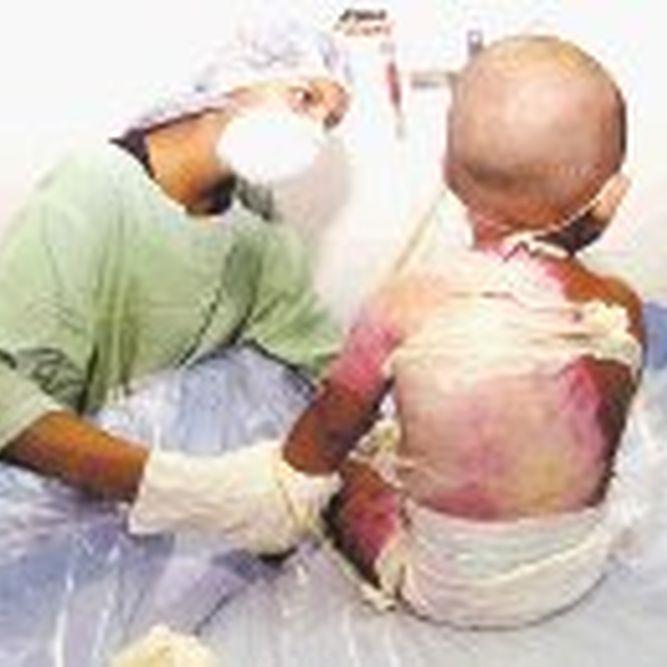 limpieza-heridas-fundamental-graves-especial_lprima20050525_0045_27